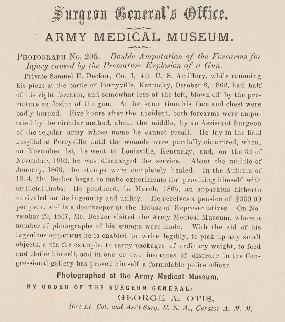 Civil War U.S. Surgeon General Photographs of Surgical Cases and Specimens Sample page 6